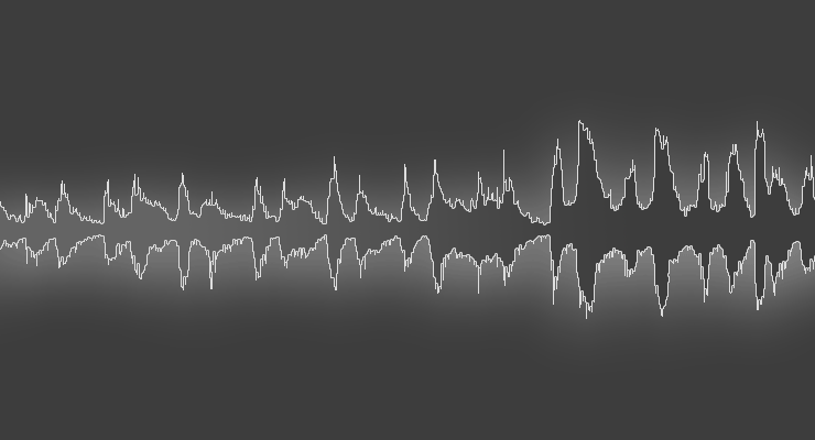 How Does Audio Compression Work, and What Is